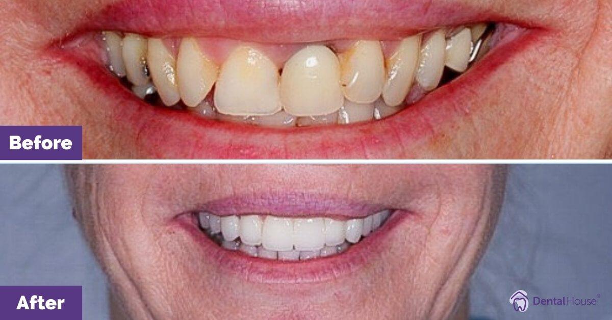 Dental-House-Group_Liz-Makeover-Journey