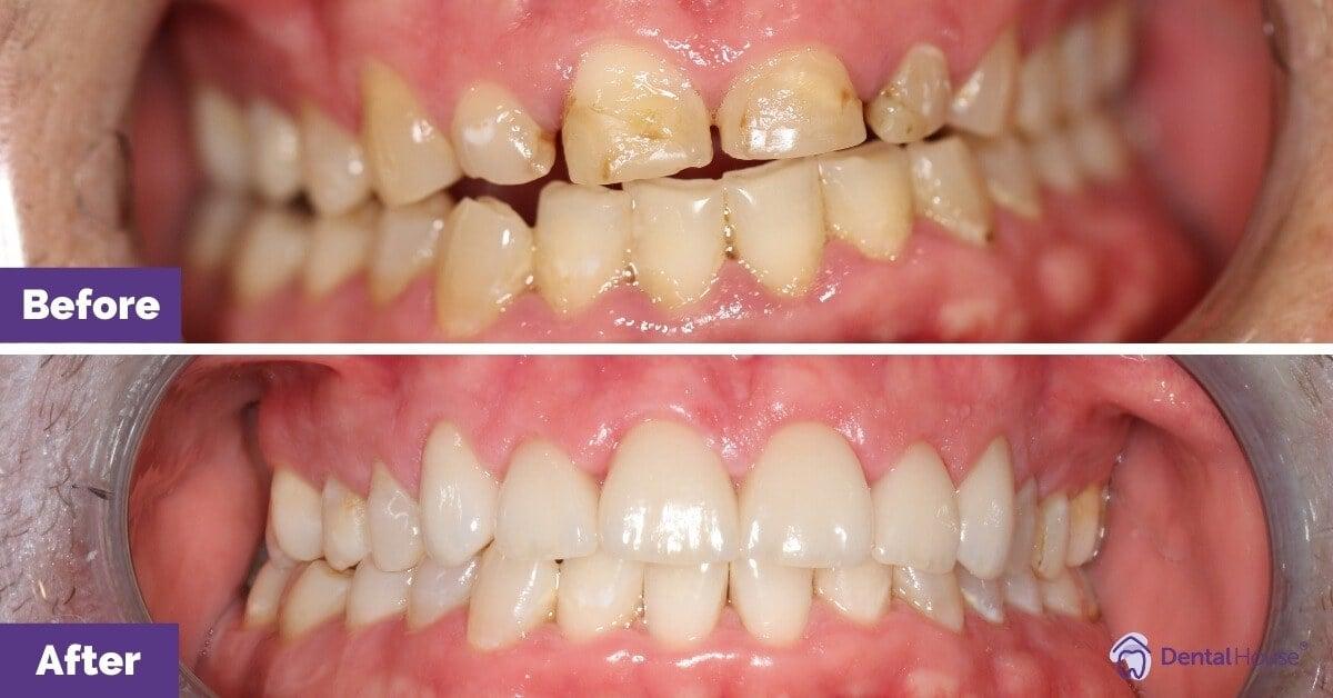 Dental-House-Group_Matthew_-Smile-Makeover-Journey