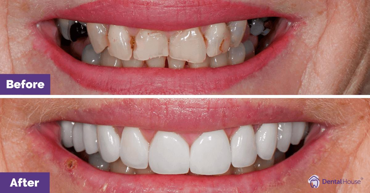 Porcelain-Veneers-Dental-Crown-in-DHG-2