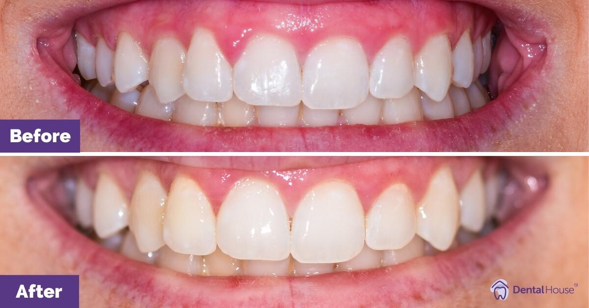 Dental-House-Group_Liz_Smile-Makeover-Journey