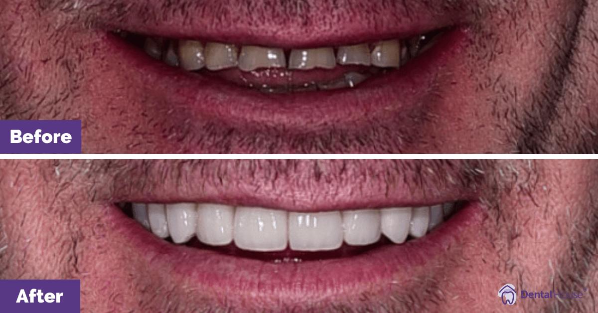 Porcelain-veneers_Melbourne_Dental-House
