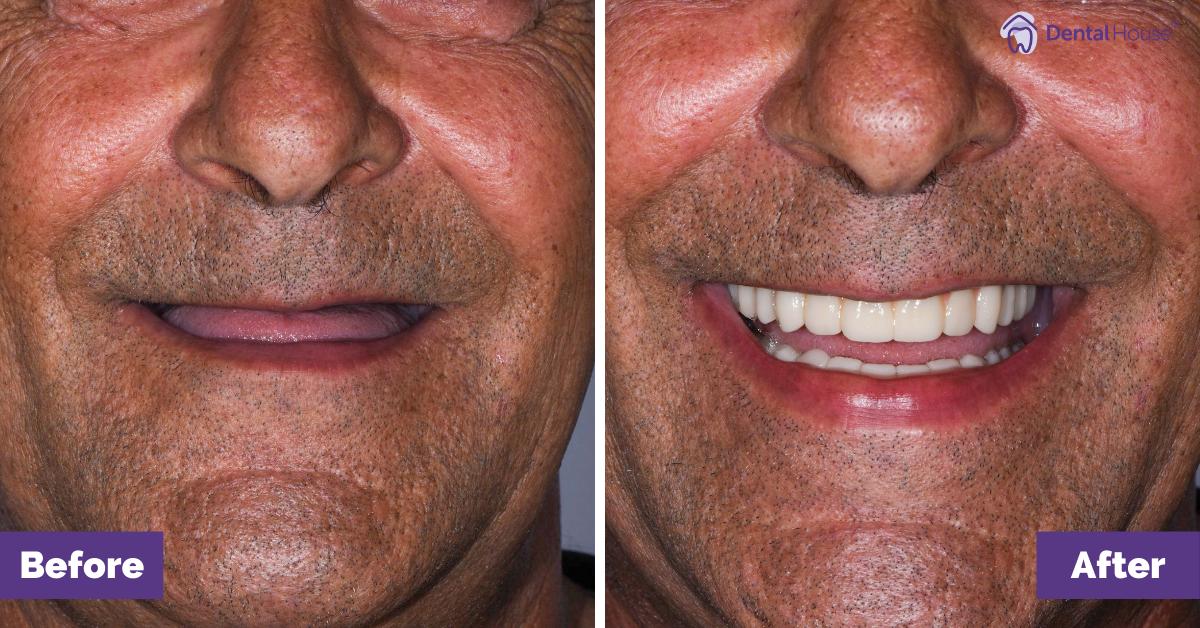 Dental House Group | John Smile Makeover Journey