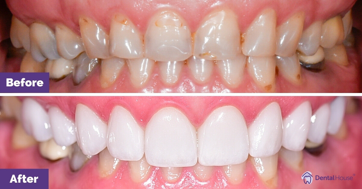 Dental-House-Group_Sarah-D_Porcelain-veneers-in-Sunbury