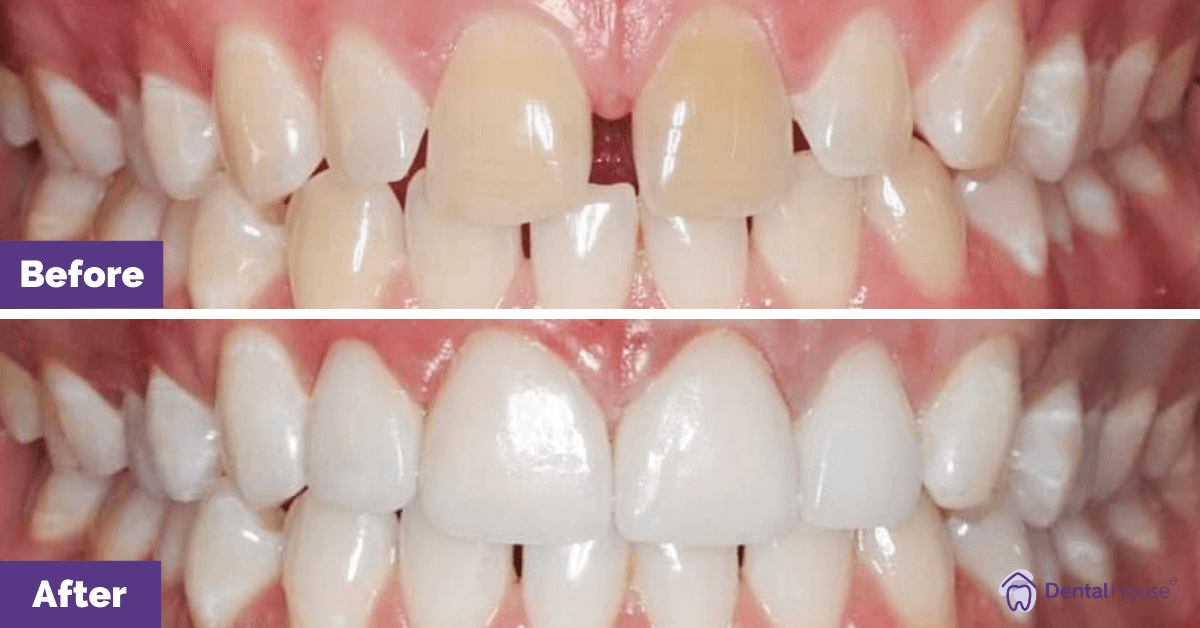Porcelain-Veneers-in-Melbourne-3