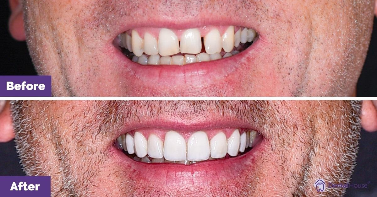 Dental-House-Group-_Paul-Smile-Makeover-Journey