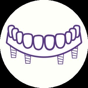 All-on-4 Icon Dental House Bacchus Marsh