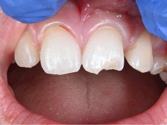 Challenges: Broken Teeth